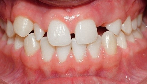 nguyên nhân mọc thiếu răng