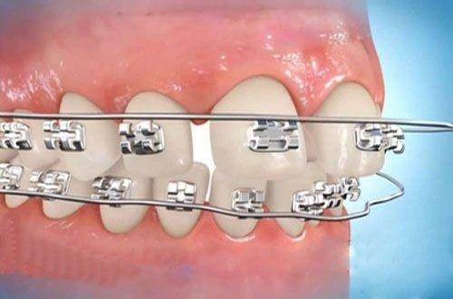 niềng răng chỉnh nha