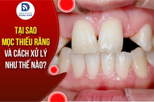 tại sao mọc thiếu răng và cách xử lý như thế nào
