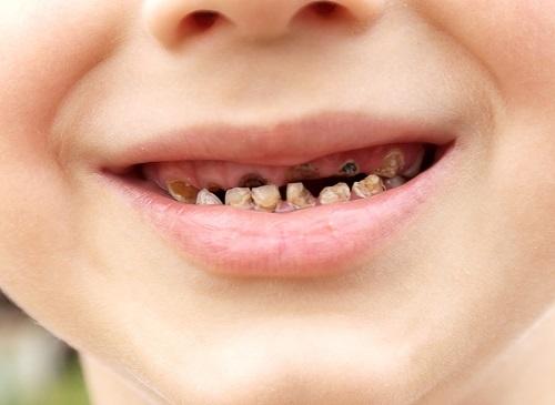 trẻ ăn bánh kẹo bị sâu răng