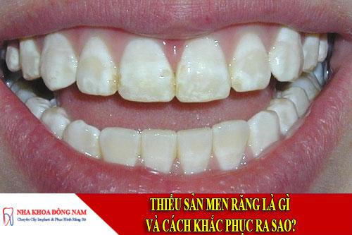 thiểu sản men răng là gì và cách khắc phục ra sao