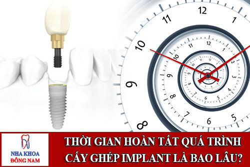 thời gian hoàn tất quá trình cấy ghép implant là bao lâu?