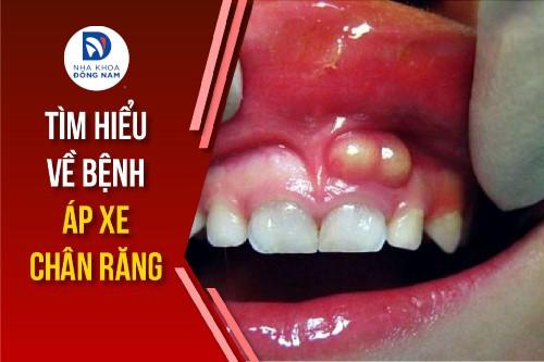 tìm hiểu về bệnh áp xe chân răng