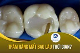 trám răng mất thời gian bao lâu