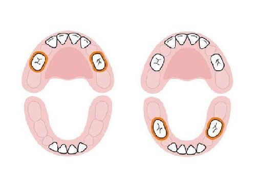 thứ tự mọc răng