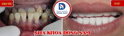bọc sứ cho răng bị khuyết cổ chân răng
