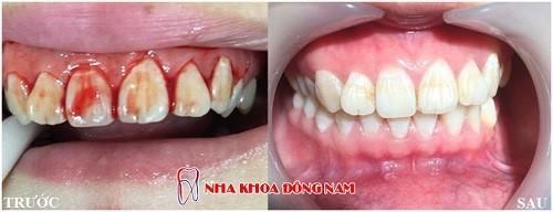 viêm nướu răng gây ê buốt
