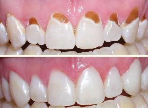 triệu chứng ê buốt chân răng