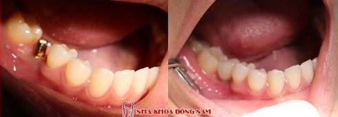 trồng răng cấm bị mất chỉ với 700usd -10