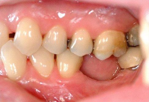 trồng răng cấm bị mất chỉ với 700usd -2