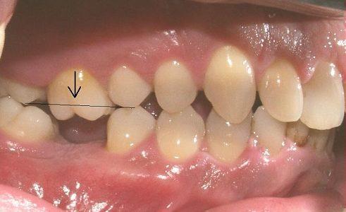 trồng răng cấm bị mất chỉ với 700usd -4