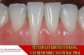tụt lợi gây khuyết cổ răng - căn bệnh nhiều người mắc phải