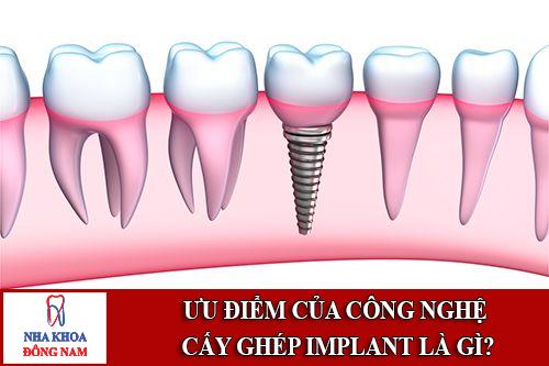 ưu điểm của công nghệ cấy ghép implant là gì