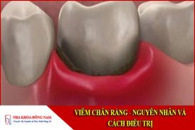 nguyên nhân và cách điều trị viêm chân răng