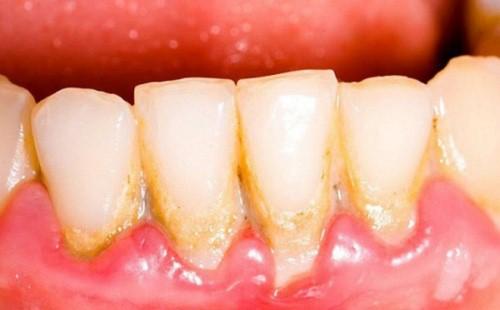 nguyên nhân viêm chân răng