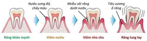 tác hại của viêm chân răng