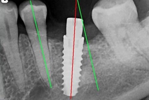 Cấy ghép Implant có thất bại không-4