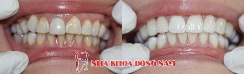 bác sĩ nha khoa làm răng sứ giỏi cần những yếu tố nào 10