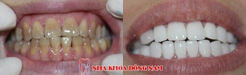 bác sĩ nha khoa làm răng sứ giỏi cần những yếu tố nào 8