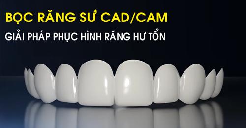 bọc răng sứ giải pháp phục hình răng hư tổn