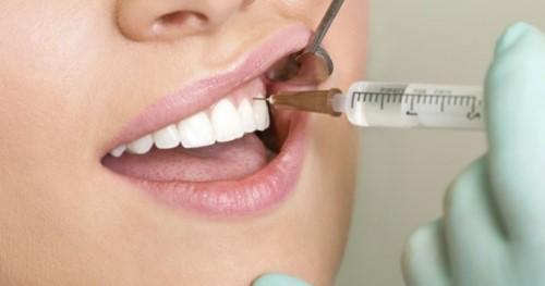 bọc răng sứ không cần mài răng được không 4
