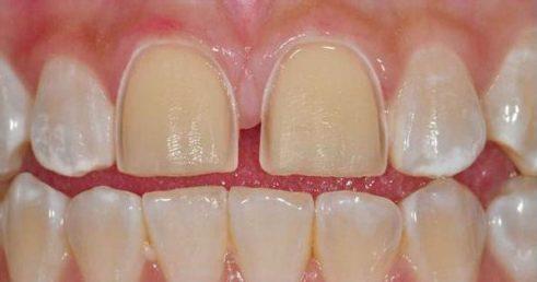 bọc răng sứ không cần mài răng được không 2