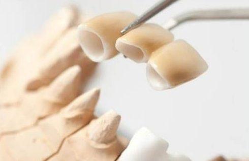 bọc răng sứ là sao? quy trình bọc răng sứ là như thế nào 7