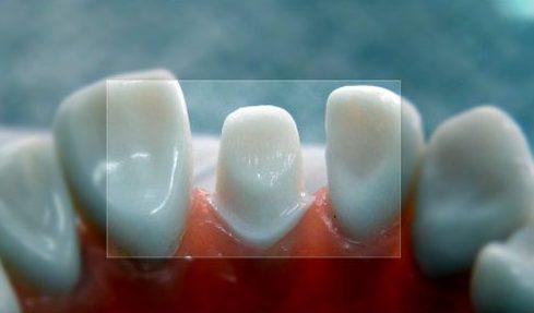 bọc răng sứ thẩm mỹ có sử dụng được vĩnh viễn không 1