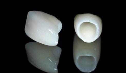 bọc răng sứ thẩm mỹ có sử dụng được vĩnh viễn không 3