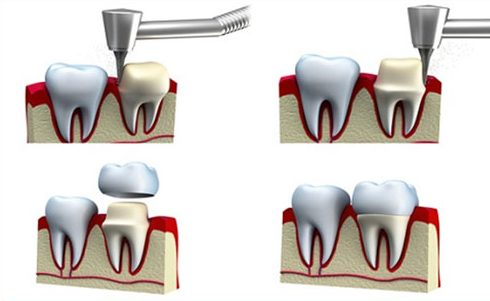 bọc răng sứ và những điều bạn cần biết 1