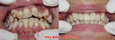 bọc răng sứ và những điều bạn cần biết 2