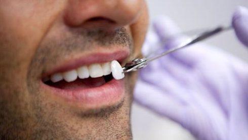 bọc răng sứ và những điều bạn cần biết 4
