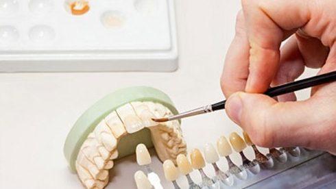 bọc răng sứ và những điều bạn cần biết 6