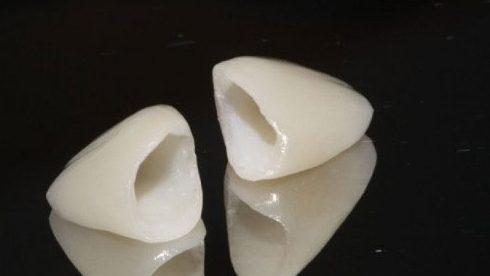 bọc răng sứ và những điều bạn cần biết 8