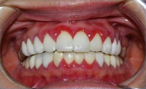 bọc răng sứ xong có tháo ra được không 4