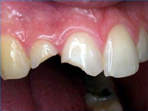bọc răng sứ xong có tháo ra được không 6