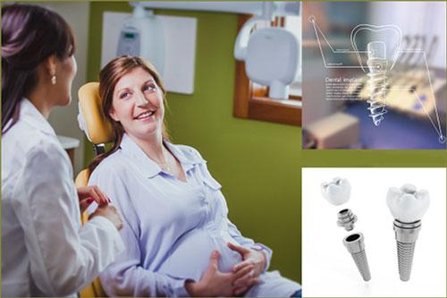 cấy-ghép-implant-cho-phụ-nữ-mang-thai-1