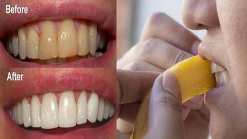 lấy vôi răng bằng vỏ chuối