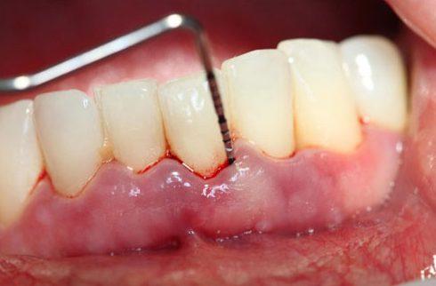 cách chữa viêm chân răng cho bà bầu 1