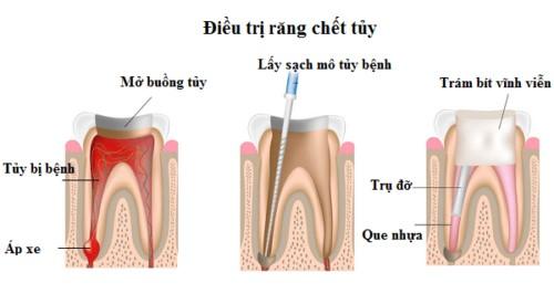 mô phỏng điều trị tủy răng
