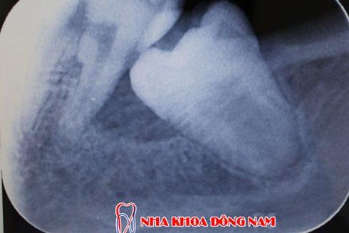 cách lấy tủy răng đúng quy trình nhất hiện nay 2