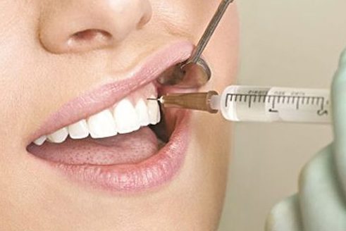 cách lấy tủy răng đúng quy trình nhất hiện nay 3