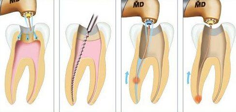 cách lấy tủy răng đúng quy trình nhất hiện nay 5