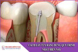 cách lấy tủy răng đúng quy trình nhất hiện nay