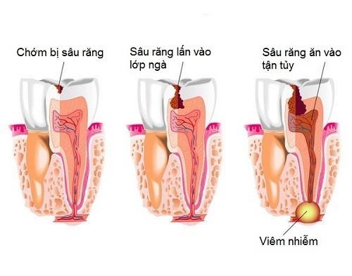 sâu răng gây viêm tủy