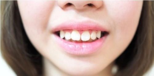 Cách Nhận Biết Răng Hô Do Răng Hay Do Hàm
