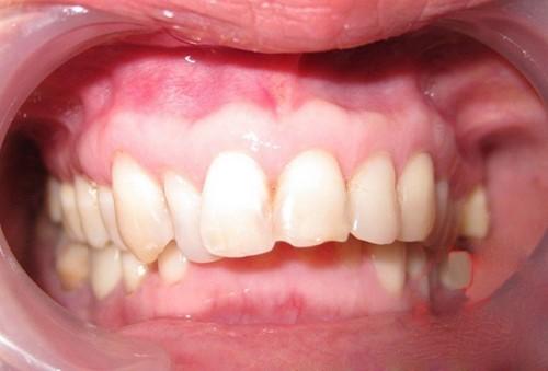 hô do răng