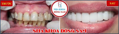 Cách nhận biết hô răng hay hô hàm