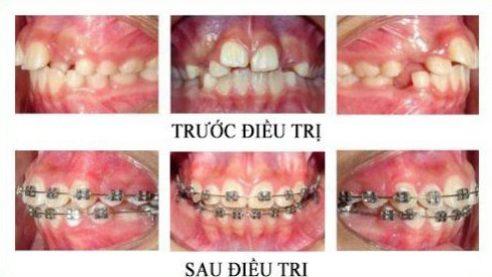 Cách nhận biết hô răng hay hô hàm 1