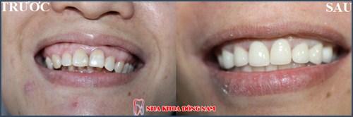 Cách nhận biết hô răng hay hô hàm 3